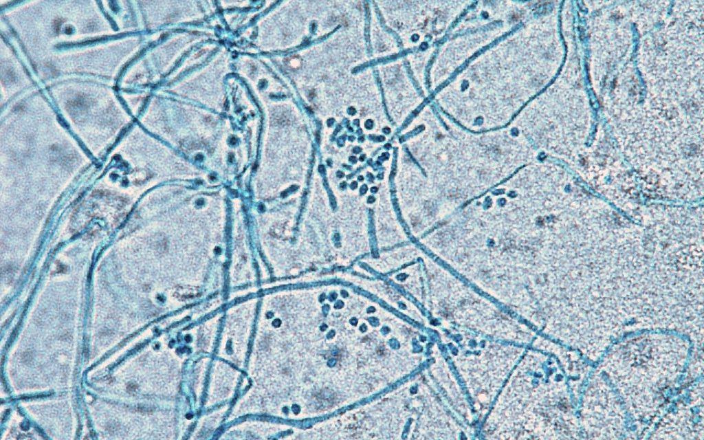 水虫菌画像